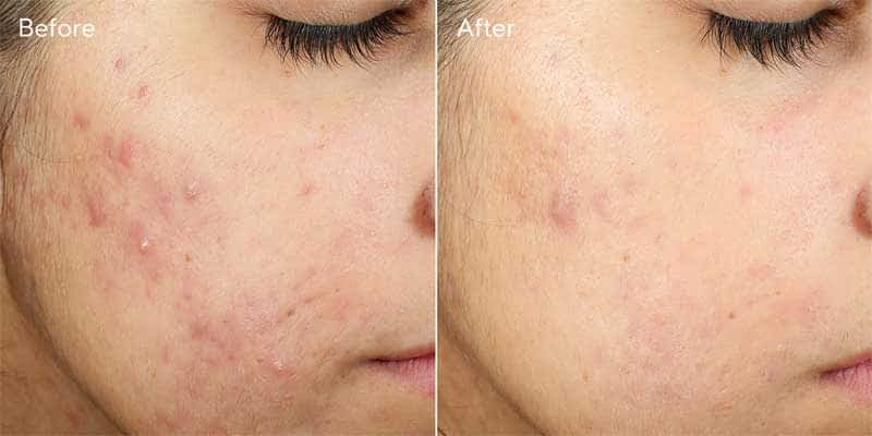 invisiscar-before-after